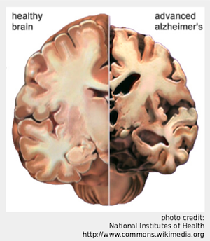 Comparison of healthy brain and advanced Alzheimer's