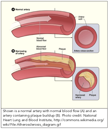 picture of a normal artery with normal blood flow and an artery containing plaque buildup