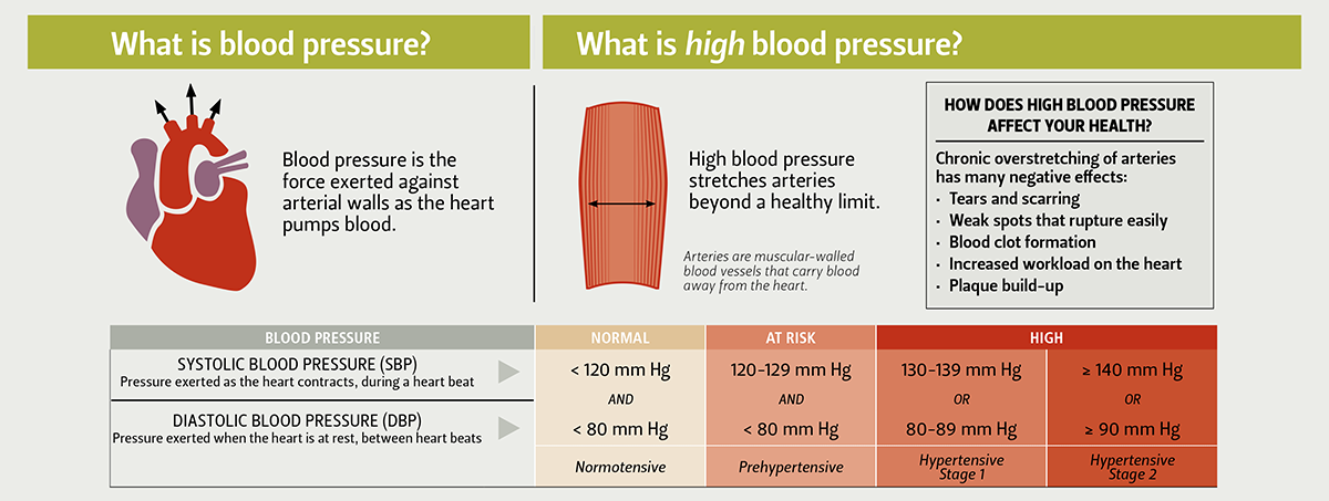 What is blood pressure? Blood pressure is the force exerted against arterial walls as the heart pumps blood. Systolic blood pressure (SBP) is the pressure exerted as the heart contracts, during a heart beat, and diastolic blood pressure (DBP) is pressure exerted when the heart is at rest, between heart beats. What is high blood pressure? High blood pressure stretches arteries beyond a healthy limit. Arteries are muscular-walled blood vessels that carry blood away from the heart. How does high blood pressure affect your health? Chronic overstretching of arteries has many negative effects: tears and scarring, weak spots that rupture easily, blood clot formation, increased workload on the heart, and plaque build-up. Cutoffs for nomal and high blood pressure: normal=normotensive means <120 mm Hg SBP and <80 mm Hg DBP. At Risk=prehypertensive means SBP 120-129 mm Hg and <80 mm Hg DBP. High blood pressure: Hypertensive stage 1 defined as 130-139 mm Hg SBP or 80-89 mm Hg DBP, and Hypertensive stage 2 is defined as 140 mm Hg or above for SBP or 90 mm Hg or above for DPB.