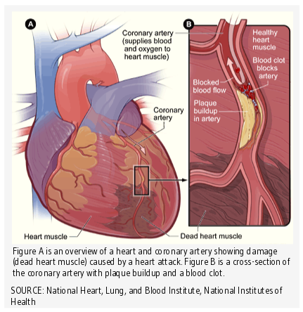 overview of a heart and coronary artery showing damage (dead heart muscle) caused by a heart attack. Also shown is a cross-section of the coronary artery with plaque buildup and a blood clot.